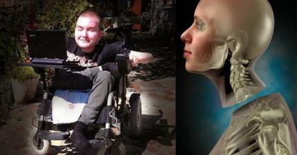 這名殘疾男子自願成為「換頭手術」第一人!這恐怖的過程你敢嘗試嗎?