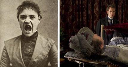 古醫服務女性下面治歇斯底里 累到發明「自己來的棒棒」