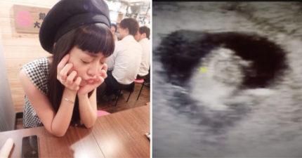 寶寶被子宮夾扁 貝童彤才當媽心情崩潰:不是第一次了!