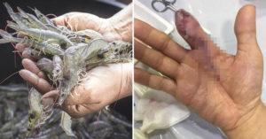 男子「洗蝦被刺傷」沒理 手指「慘遭截肢」醫生:晚一天就沒命