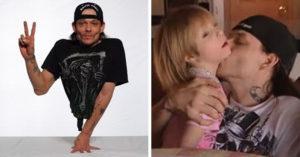 和7年未婚妻甜生「美麗女兒」?「半身男」鑑定DNA結果驚人