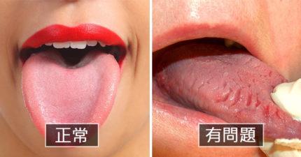 9種「舌頭上的小線索」 粉嫩紅的舌頭絕對不是最健康的那種!